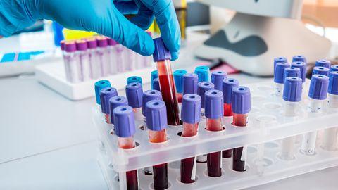 Koroonaviiruse testi saab teha vaid sümptomite ilmnemisel.