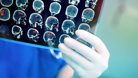 Teadlased suutsid insuldi järel ahjustunud aju piirkonna taastada.
