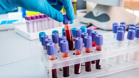 Koroonaviiruse testi saab Eestis teha vaid sümptomite ilmnemisel.