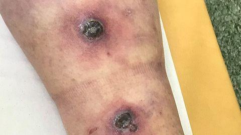 Foto patsiendi jalast