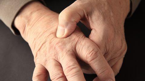Käte suremine võib muutuda krooniliseks.