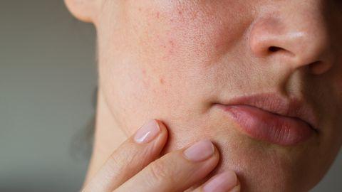 Enamasti saab naha kuivust ja kiskuvat tunnet vältida korrigeerides vaid mõnda igapäevast harjumust naha eest hoolitsemisel.