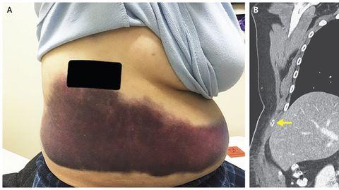 Laik naise kehal (pildil A) ja katkine roie (pildil B).