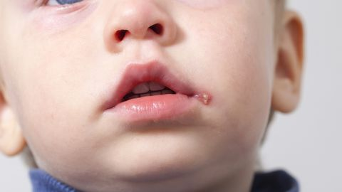 Mitte ainult huulte probleem: herpes ronib silma ja mujalegi