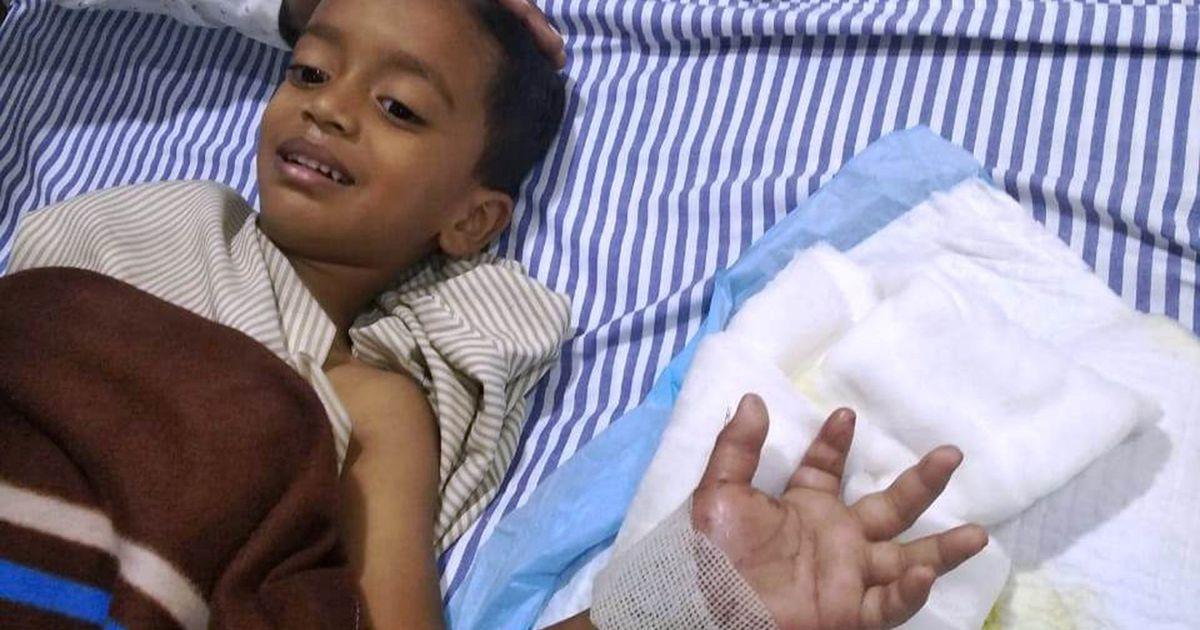 Väike poiss kaotas muruniiduki tõttu käe, kuid arstidel õnnestus see päästa