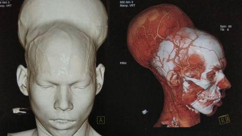 Kasvaja tõttu oli mees juba aasta aega mõlemast silmast pime.