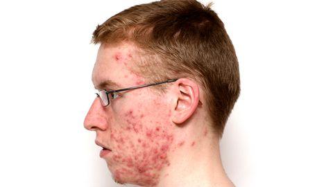 Akne papulopustuloosses faasis on nahal põletikuline lööve.